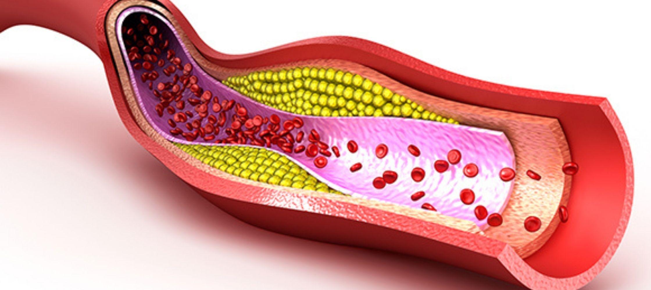 te hoog cholesterol